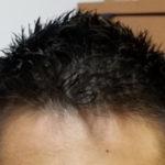 髪型は薄毛対策の第一歩 | 短髪にしてからの変化【30代男性口コミ】
