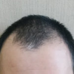 気になるM字ハゲ!原因は洗髪のやり方?【20代男性口コミ】