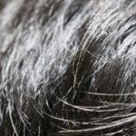 【薄毛の悩み】3回の植毛と飲み薬の結果 | 40代男性口コミ